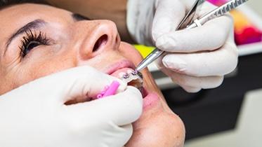 A Ortodontia corrige as irregularidades dento-faciais, alinhando os dentes, o suporte ósseo, los ábios e o equilíbrio facial.