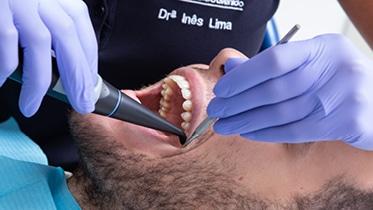 """A Endodontia trata a polpa dentária e todo o sistema de canais radiculares e dos tecidos periapicais, para que o dente fique """"sem vida""""."""